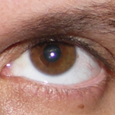 Hypertropia (left eye)