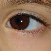 Accommodative Esotropia